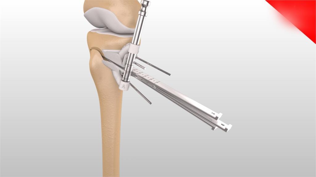 關節炎不用換關節!高位脛骨截骨手術領先全球