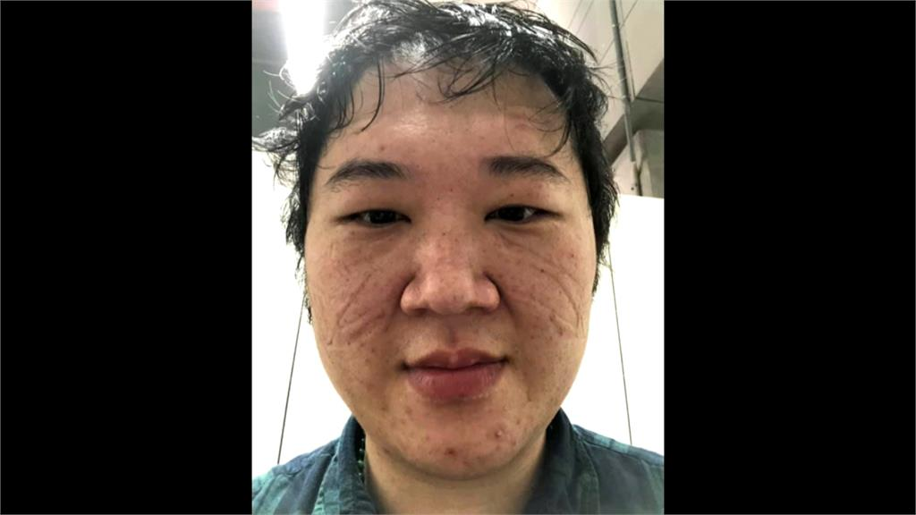口罩深深壓痕成「光榮印記」採檢醫師自拍照惹哭網友