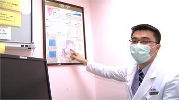 國內今年首起茲卡病例 40歲男赴泰國旅遊確診