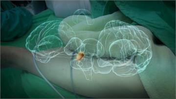 腦癌治療新進展!中研院新技術可提升病患存活期