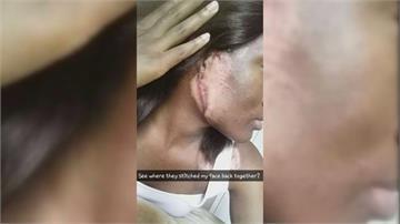 手臂上種植耳朵 女大兵車禍重生