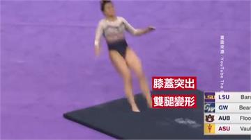 女子空翻失誤落地雙膝變形 嚇壞觀眾評審