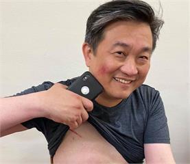 快新聞/藍委突襲堵「陳菊」 王定宇掛彩了!