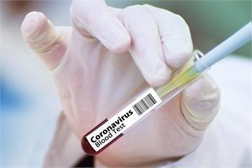 快新聞/英國牛津大學開始武肺疫苗臨床試驗 秋季可望問世