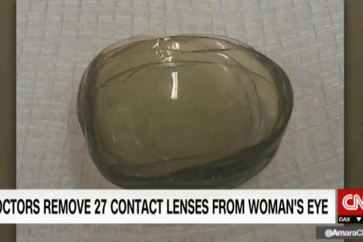 眼睛不適就醫 老婦眼竟藏27片隱形眼鏡!