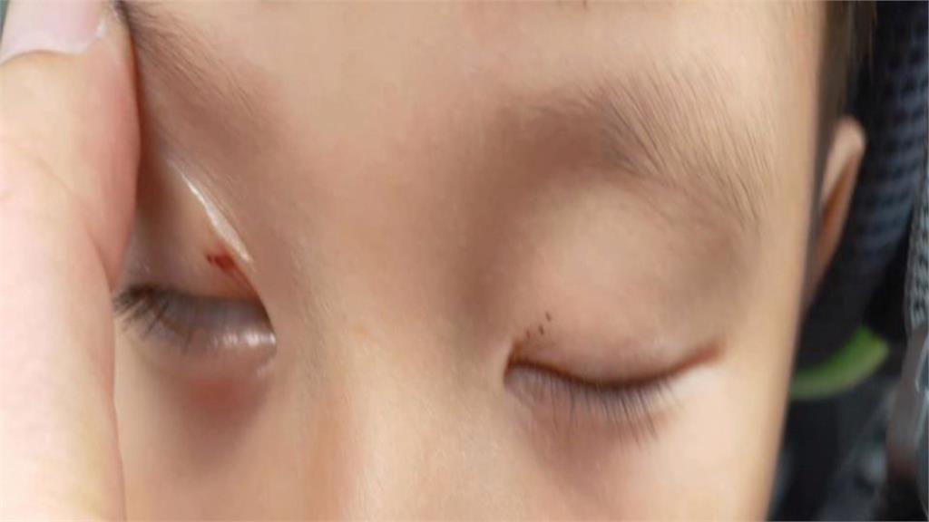 三峽古蹟拱橋施工傷路人 5歲男童眼睛慘遭割傷
