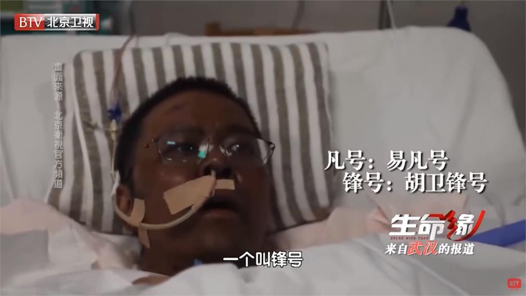 武肺病毒攻擊人體多處!中國2醫生肝功能受損全身暗沉