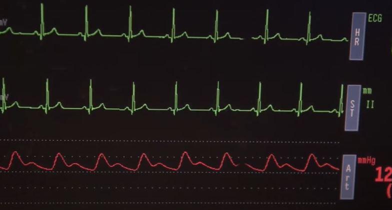 快新聞獨家/中醫大跨區器捐爭議 台大醫曝關鍵在「器官受贈優先權」
