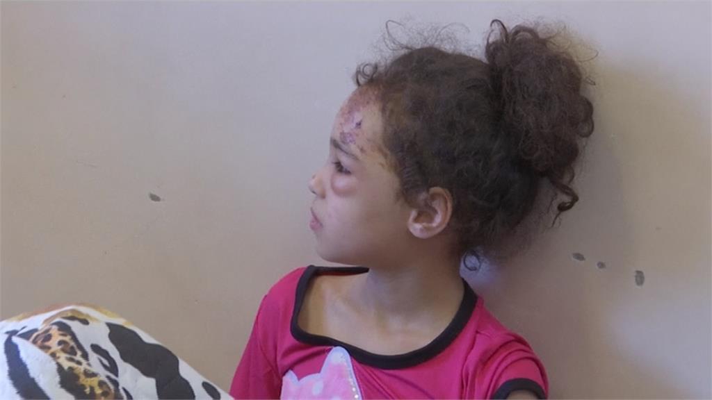 全球/被奪走的童年... 以巴戰火兒童死傷慘重