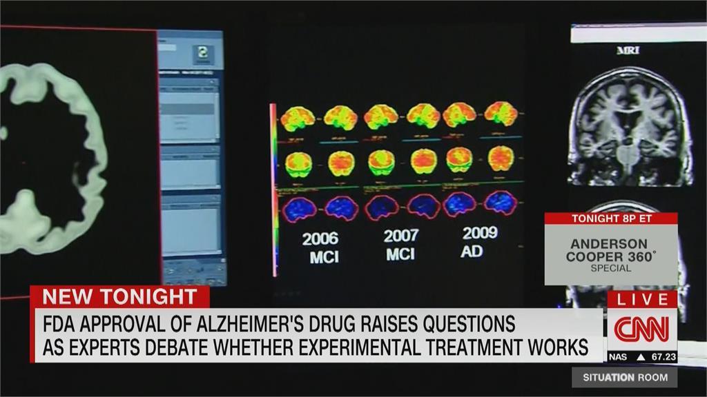 輕度阿茲海默症患者新希望!近20年首次!美國FDA批准阿茲海默症新藥