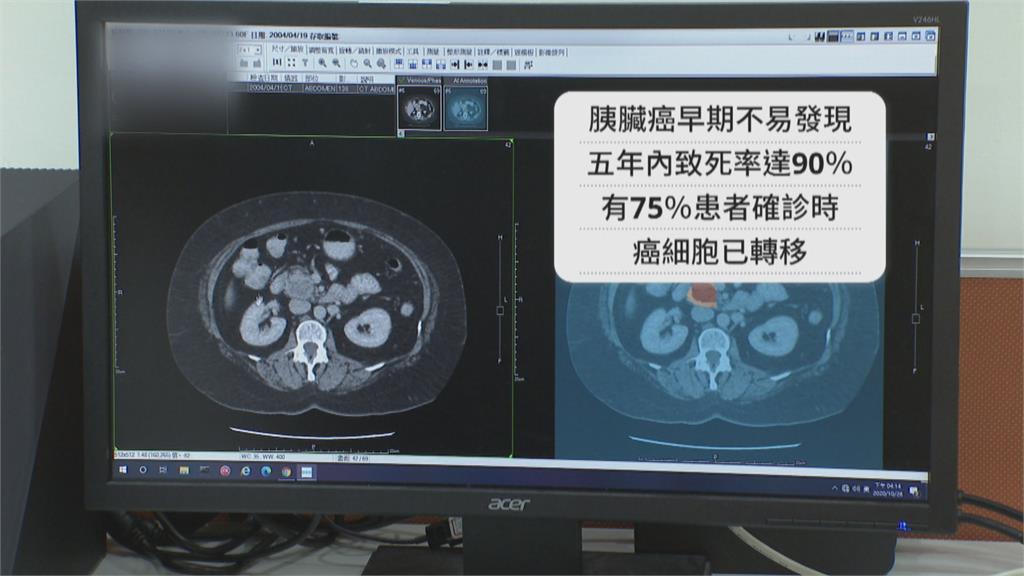 中研院合成胜肽分子!  抑制胰臟癌細胞轉移