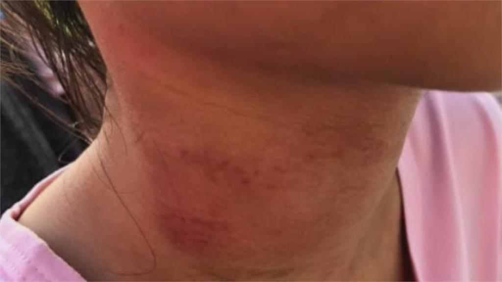 怕!苗栗灣麗親子公園才開幕2週 小朋友溜滑梯被童軍繩勒頸「紅腫受傷」