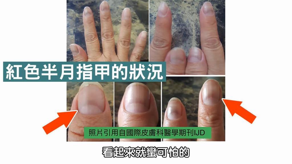 武肺新病徵!指甲變色、剝落代表染疫?醫師:表面有這1症狀要多注意