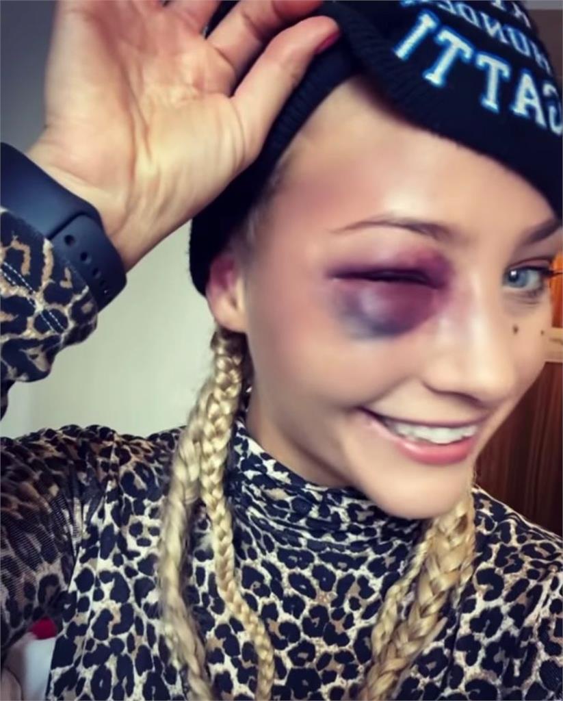 美女拳擊手「蕾絲內衣」火辣過磅 引對手怒火猛拳痛擊成豬頭!