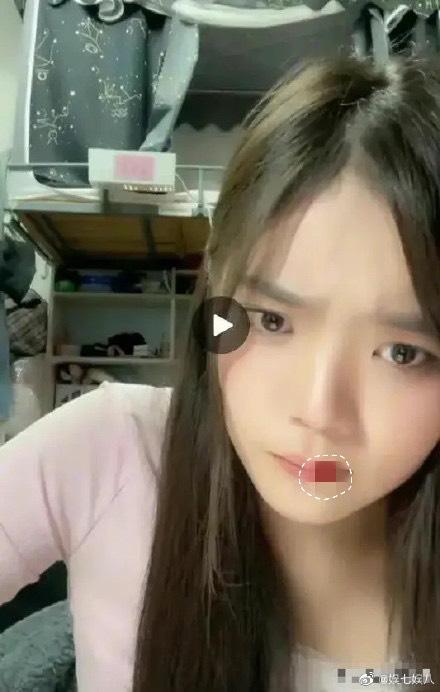 中國20歲女偶像直播「吐鮮血」秒斷線!千名粉絲目擊驚呆