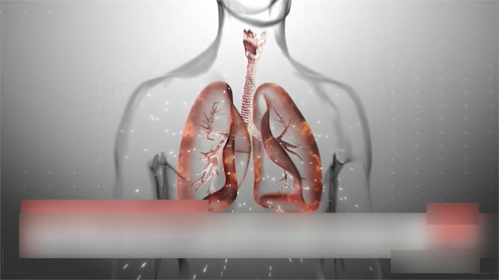 雙胞胎姊妹確診武肺 2人病程發展截然不同